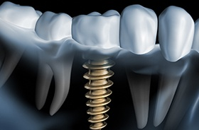 X-ray of dental implant post in gum tissue