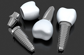 Closeup of smile and dental implant animation