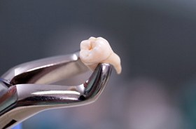 A dental instrument holding an extracted tooth