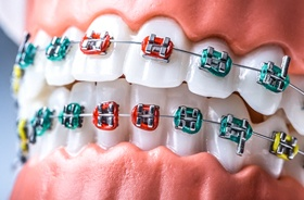 Close-up of dental model with colorful orthodontic brackets